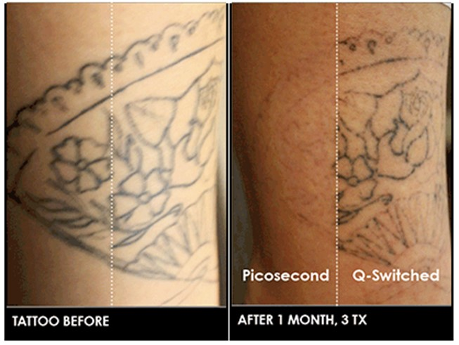 Picosure Laser Tattoo Removal Virginia Beach Laser