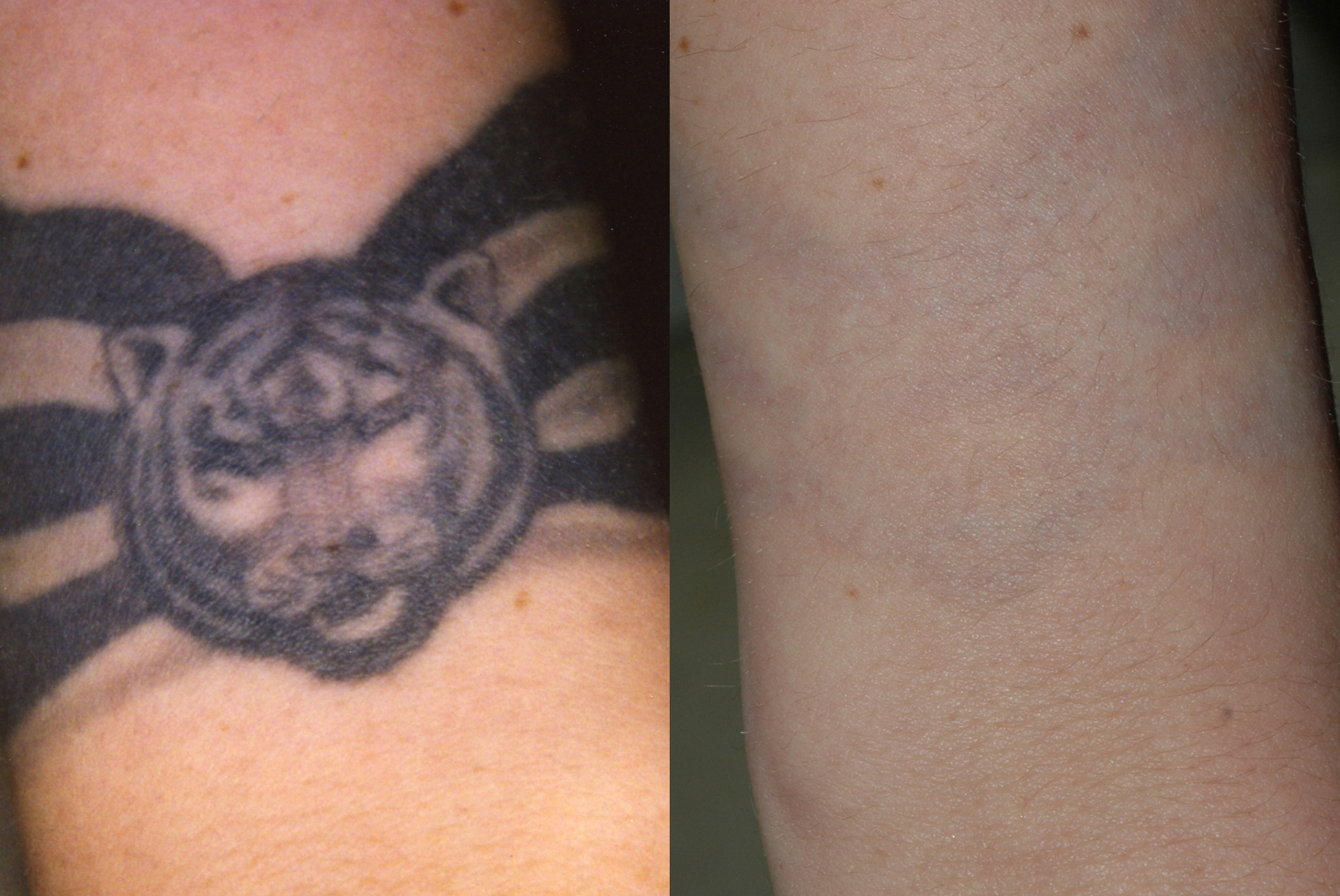 Before and after laser tattoo removal